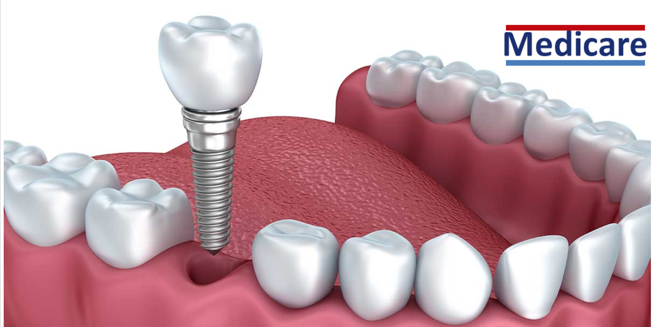 Dental Implant Covered By Medicare